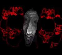 Zugezogen Maskulin - Endlich Wieder Krieg (Teaser)